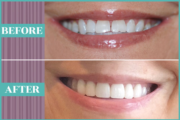 SmileMakeOver_Gallery_002