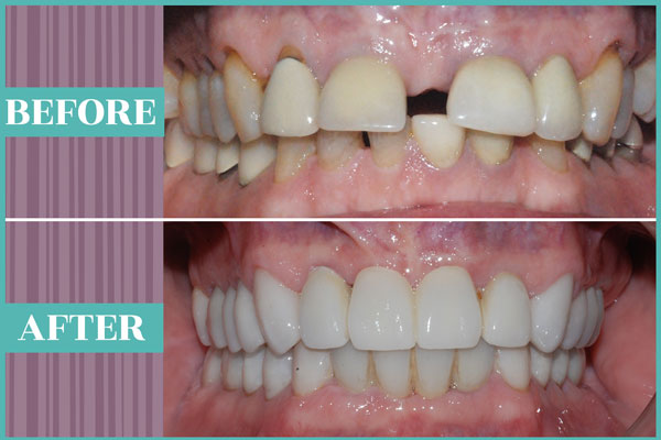 SmileMakeOver_Gallery_003